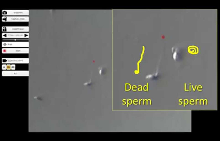 LAISS - Laser-Assisted Immotile Sperm Selection