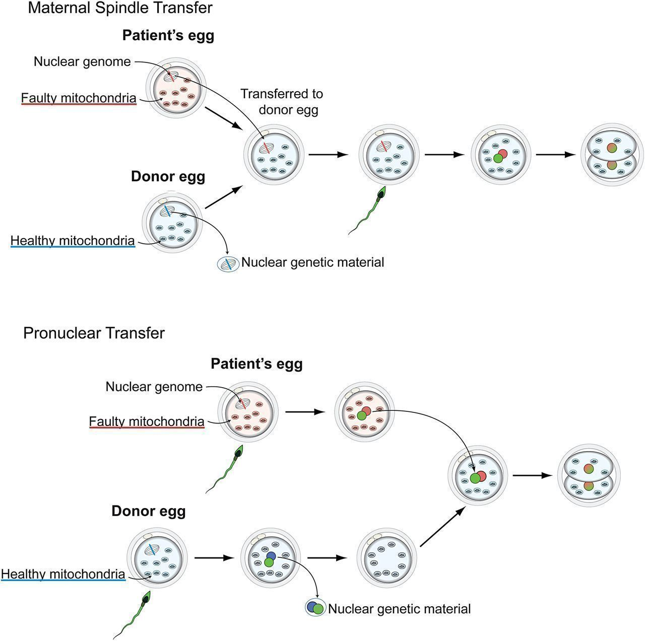 Maternal spindle transfer and Pronuclear transfer.