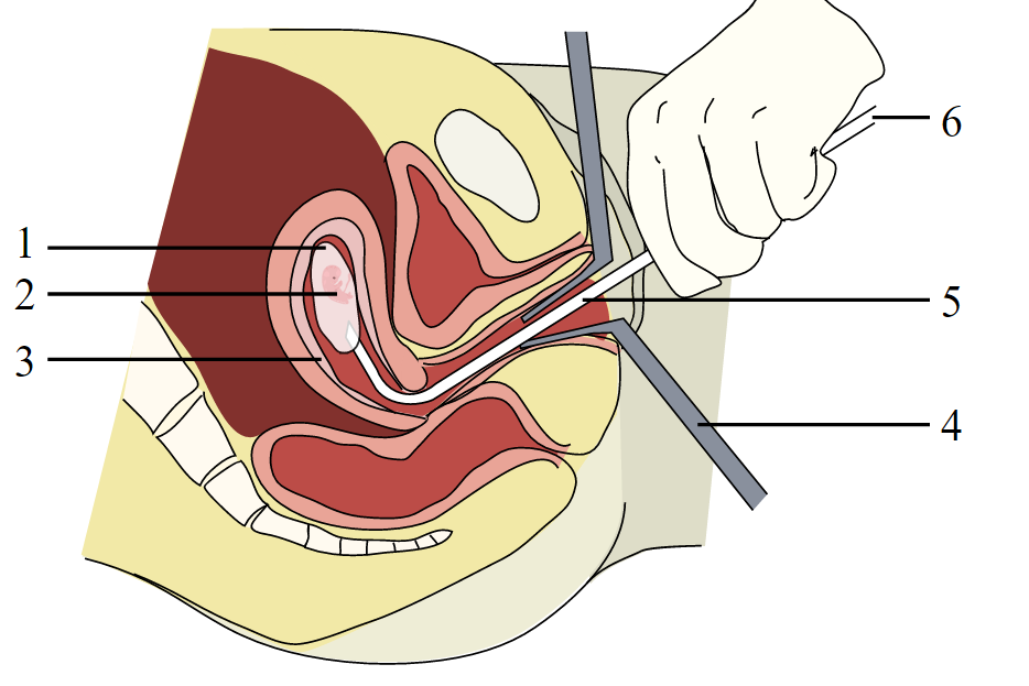 A vacuum aspiration abortion at eight weeks gestational age (six weeks after fertilization). 1: Amniotic sac 2: Embryo 3: Uterine lining 4: Speculum 5:Vacurette 6: Attached to a suction pump