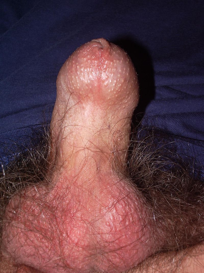 Picture of erect penis with the phimosis.