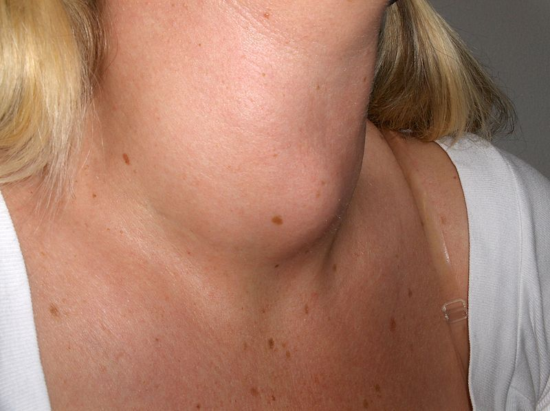 Goiter is a swelling of the neck or larynx resulting from enlargement of the thyroid gland (thyromegaly), associated with a thyroid gland that is not functioning properly.