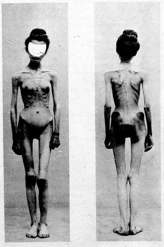 A photograph from 1900 of a woman suffering from anorexia nervosa.
