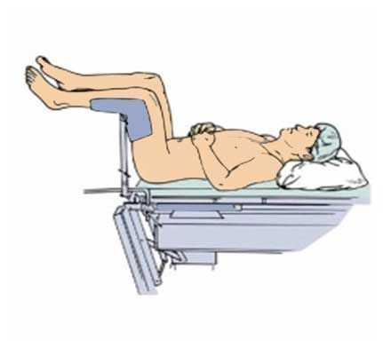 A lithotomy position.