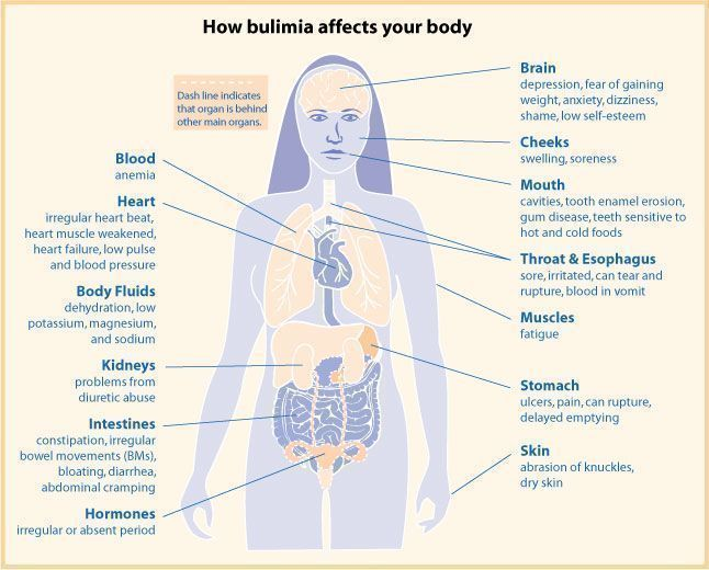 Pic. 1: Scheme of bulimia related complications found in different organ systems.
