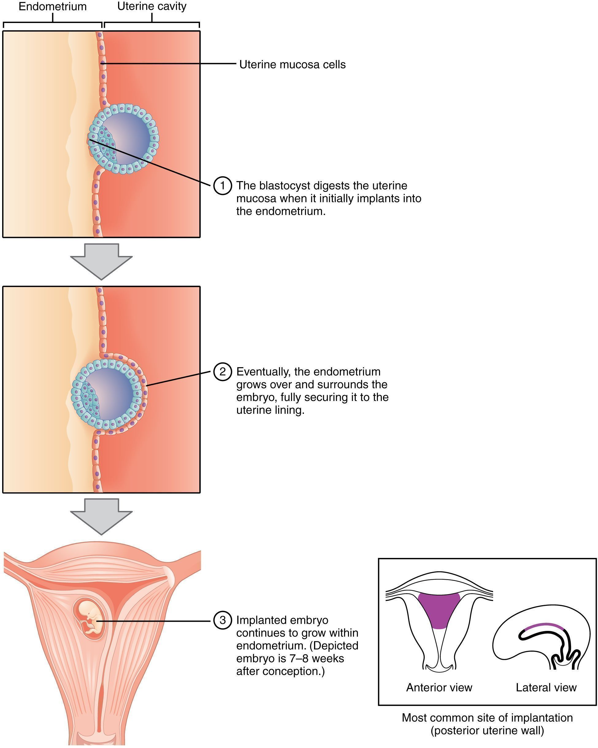 In humans, implantation is the very early stage of pregnancy at which the conceptus adheres to the wall of the uterus. At this stage of prenatal development, the conceptus is a blastocyst.