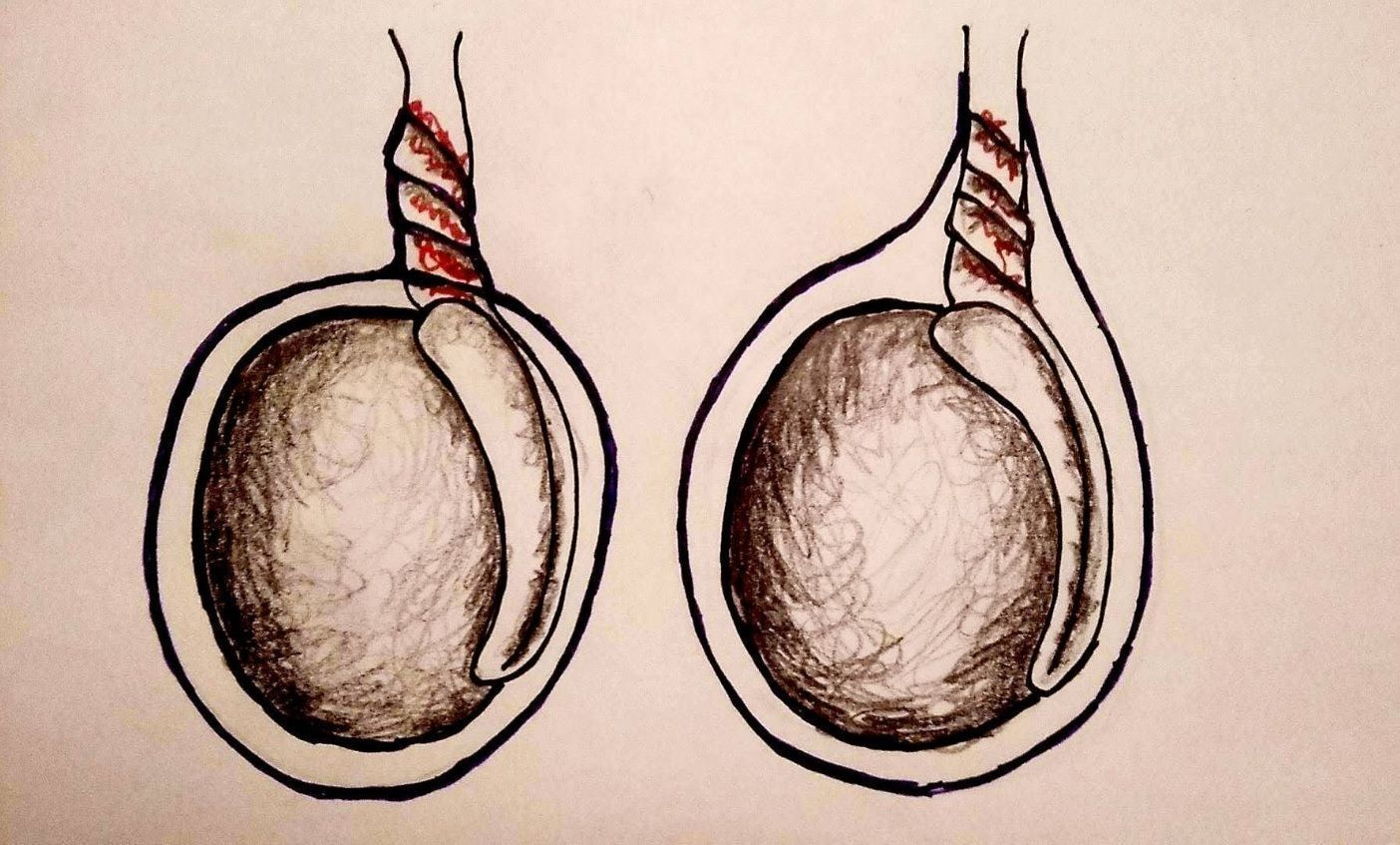 Two different types of testicular torsion: extravaginal on the left, intravaginal on the right.