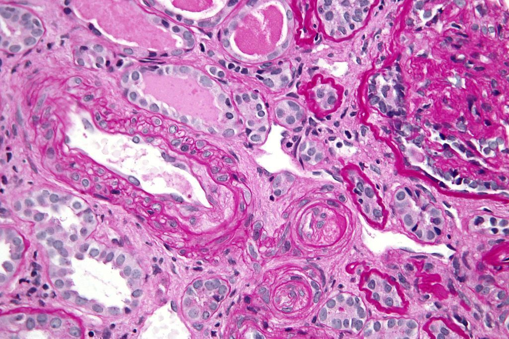 Micrograph showing an advanced thrombotic microangiopathy.