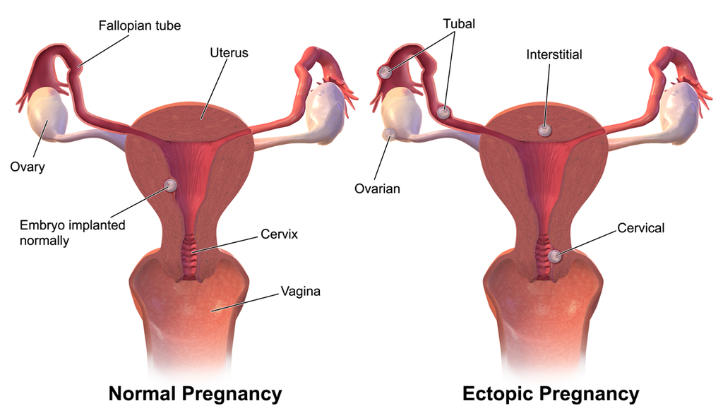how to get pregnant with blocked fallopian tubes