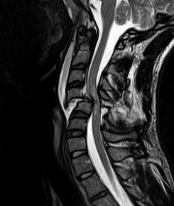 Cervical Spine magnetic resonance imaging (MRI) of patient with SCI. There is fracture and dislocation and also spinal cord compression.