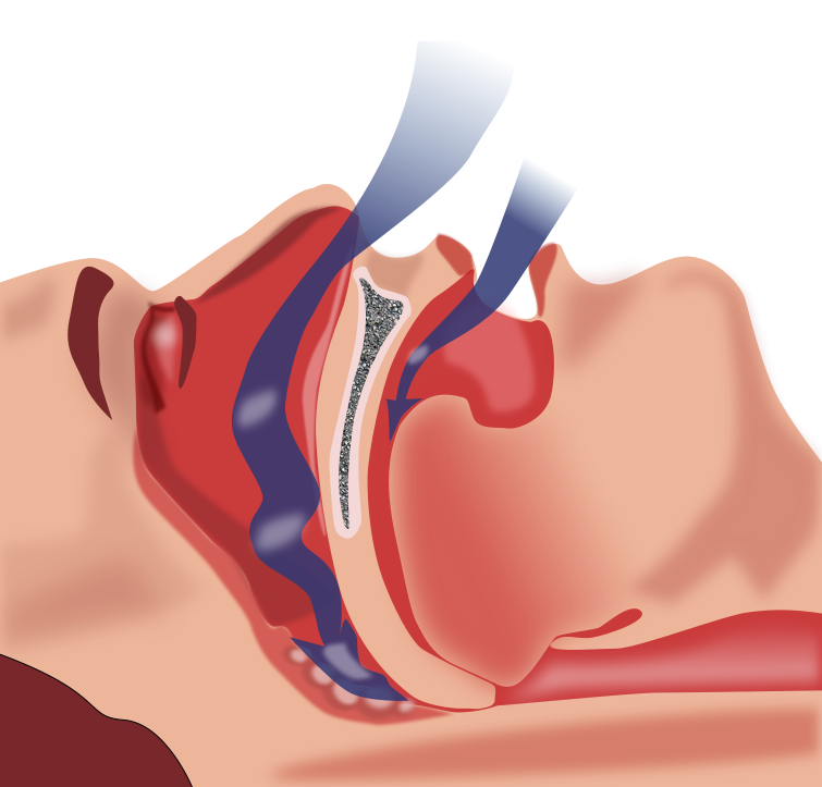 An illustration how the airways become obstructed in patients with obstructive sleep apnea.
