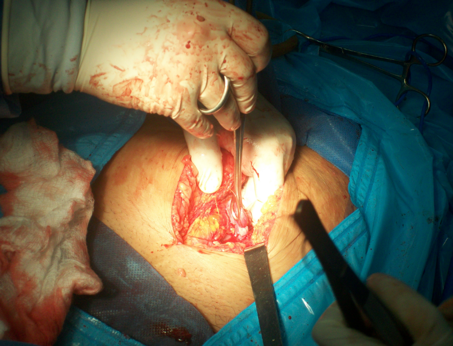 An elective tubal ligation performed as a secondary procedure following a cesarean section.