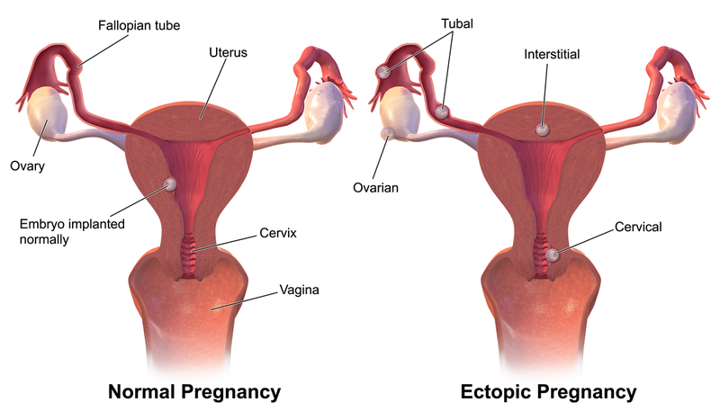 Unilateral Fallopian Tube Blockagefertilitypedia