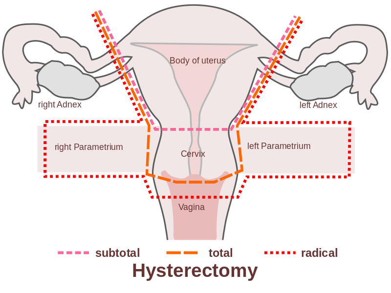 Pic.1: Types of hysterectomy