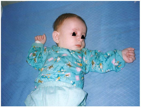 A five months old boy with Angleman syndrome and drug resistant infantile spasms.