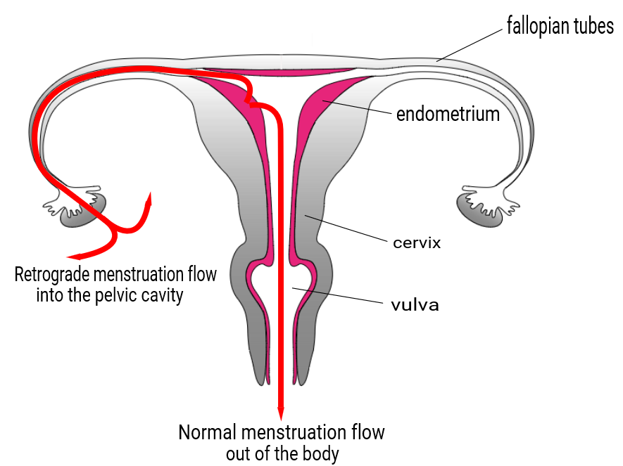 The menstrual fluid is flowing in retrograde direction through fallopian tubes into the pelvic cavity.