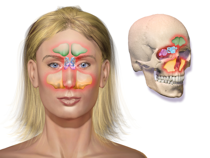 A graphic showing the localization of paranasal sinuses. Inflammation of the sinuses together with inflammation of the nasal cavity is called rhinosinusitis.