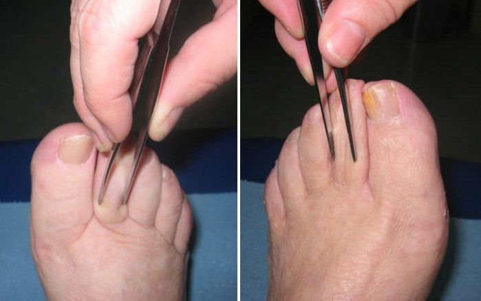 Lymphedema (swelling) of the hands and feet/Fertilitypedia