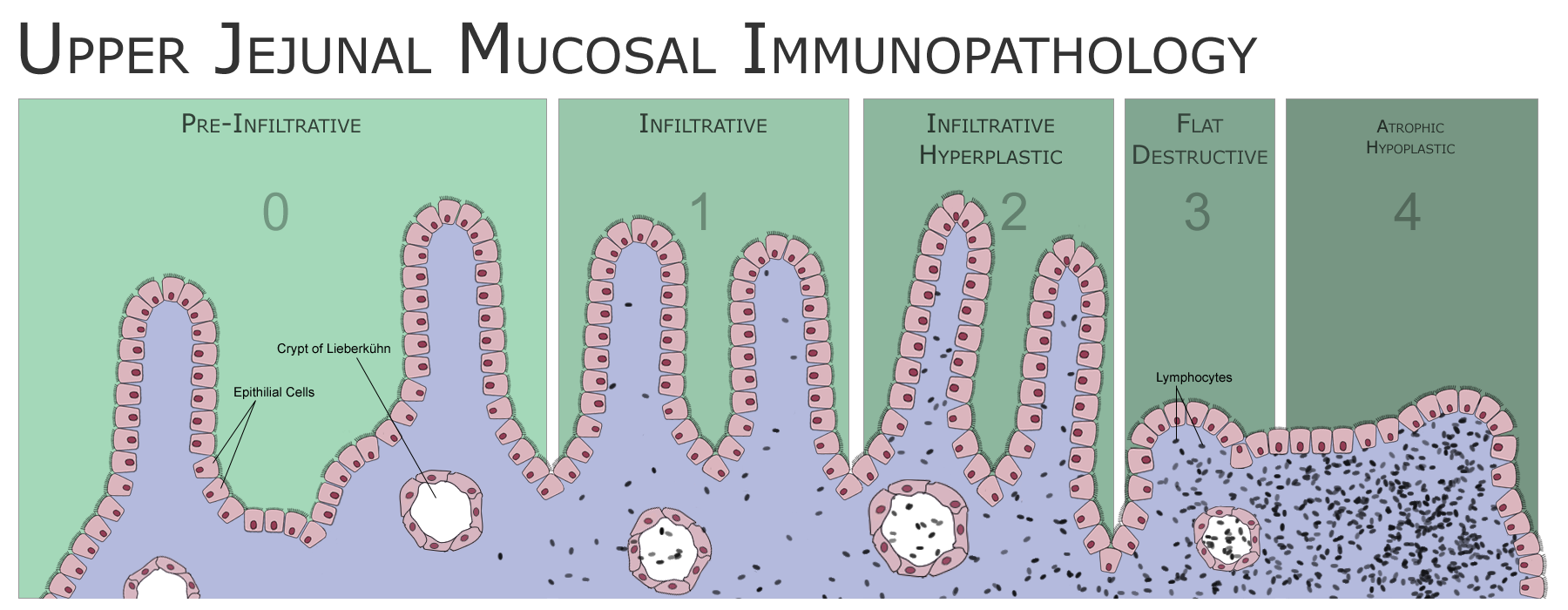 An illustration of the phases of intestine inflammation caused by coeliac disease, with its end-stage of shortened villi and rich lmyphocyte infiltration of the mucosa.