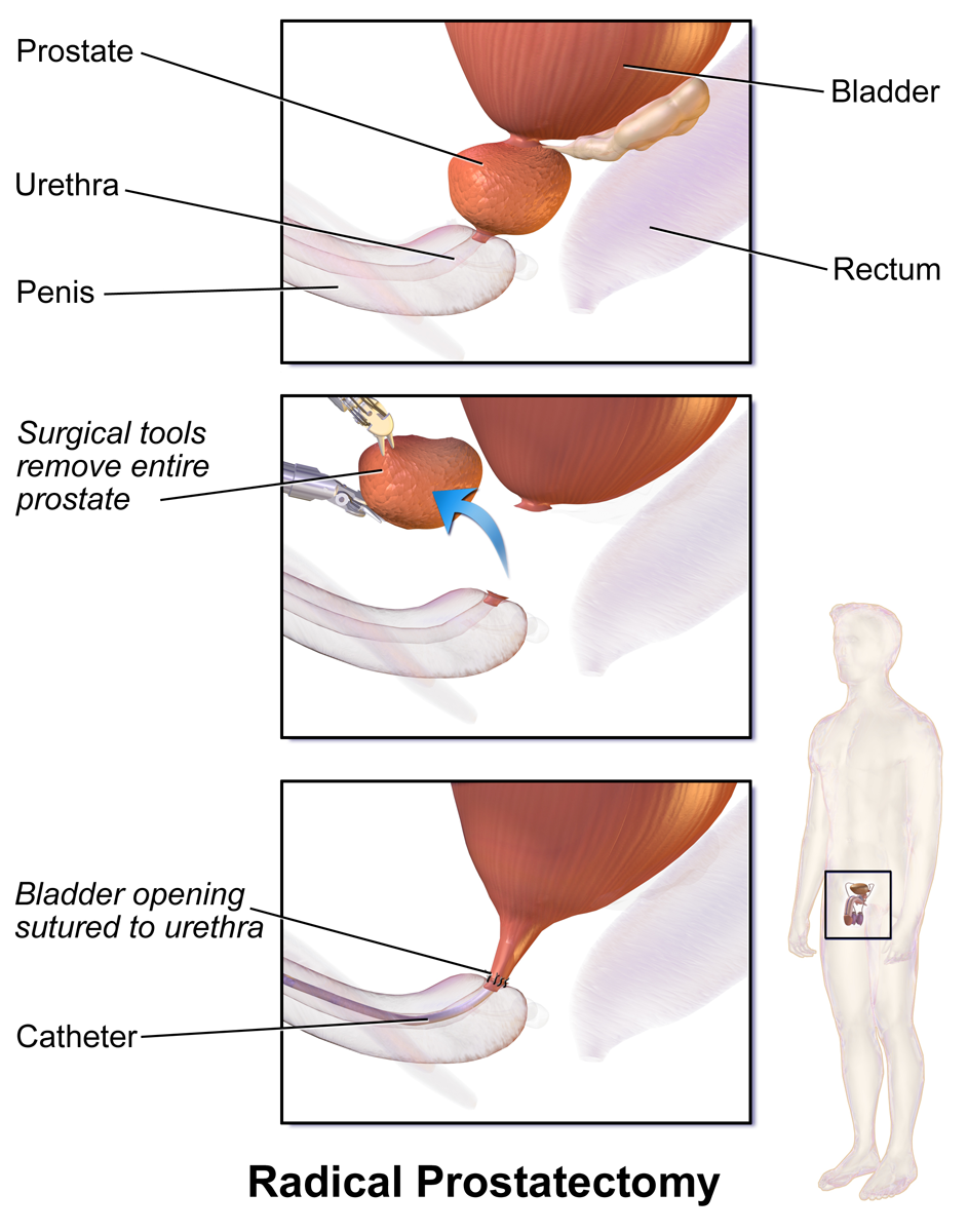 Pic. 1: Prostate removal