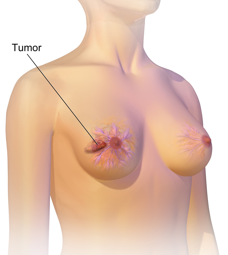 Pic. 1: Breast cancer