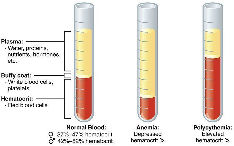 In anemia, the amount of red blood cells is usually significantly decreased. Hematocrit is the more exact indicator, standing for the ratio of blood cells volume and the volume of blood in the circulation.