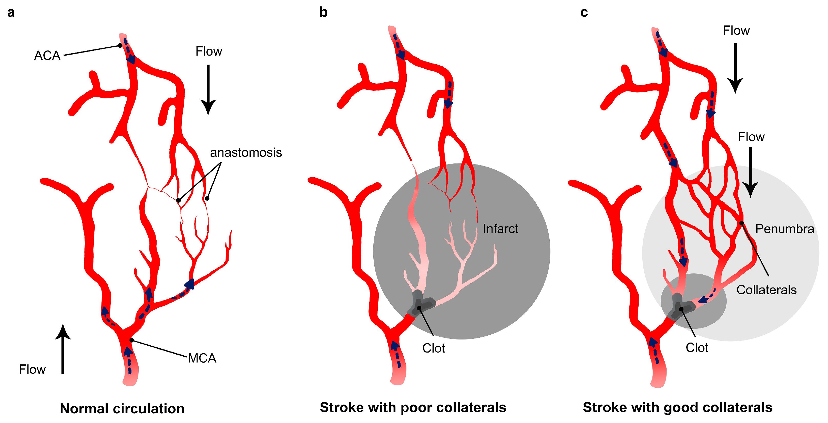 Different stroke extent based on non/existence of good collateral circulation.