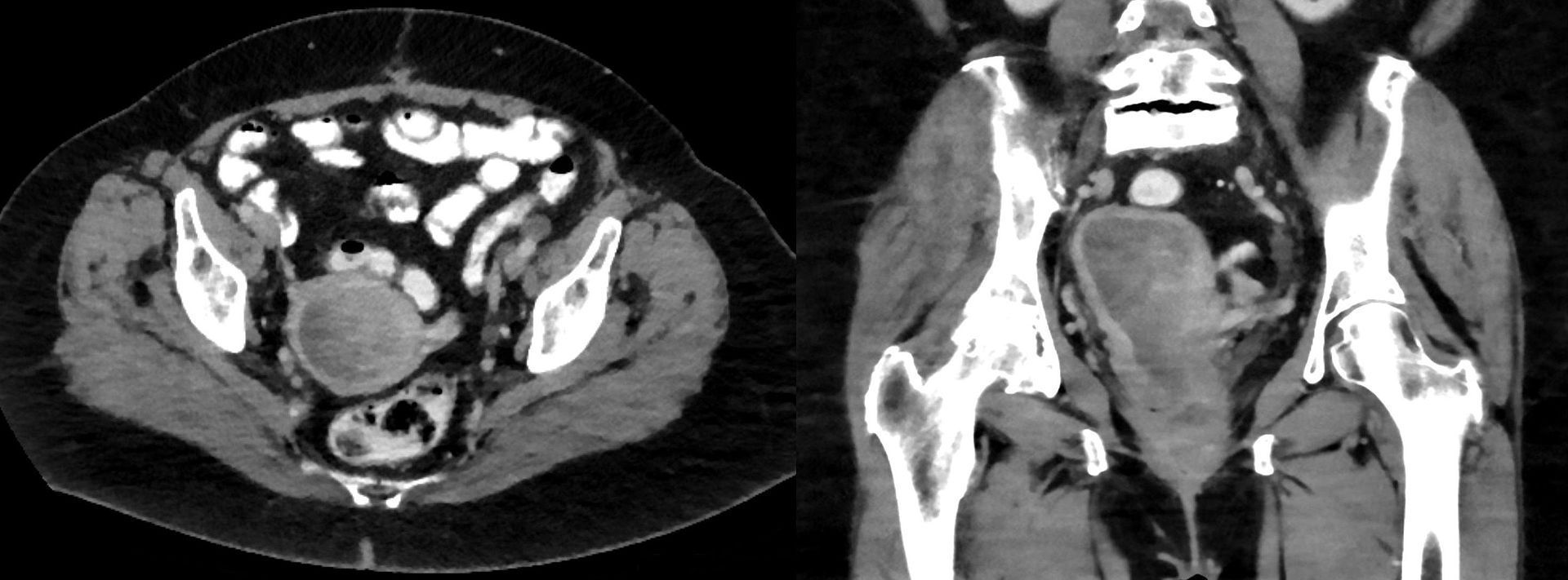 CT scan of pelvic area of a woman showing the enlarged uterus with uterine leiomyosarcoma.