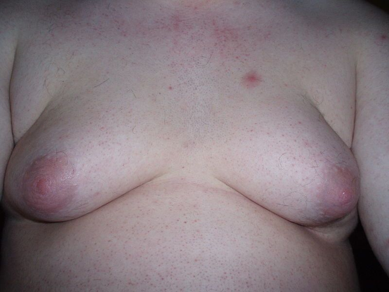 Male with very severe gynecomastia.