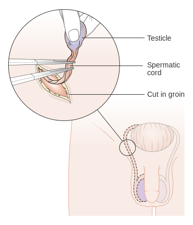 Diagram of the incisions in an orchiectomy.