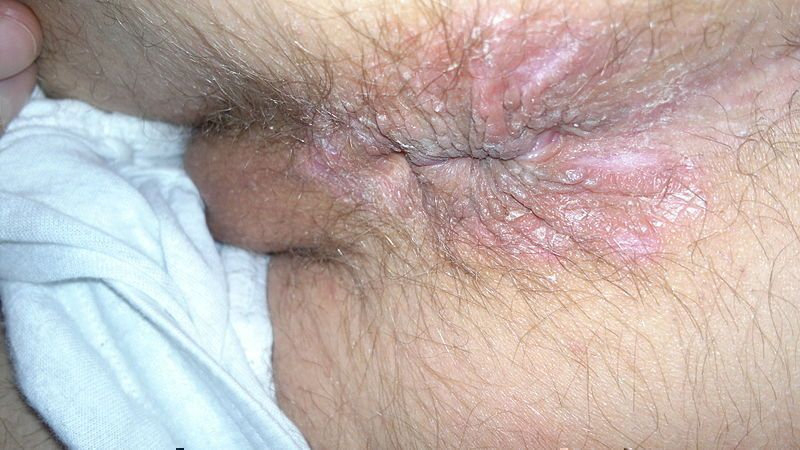 Tightest pussy trouble penetrating