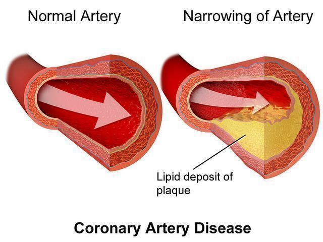 Atherosclerosis can be one of the results of elevated lipids and inflammation.