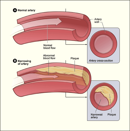 The illustration shows a normal artery with normal blood flow (figure A) and an artery containing plaque buildup (figure B).