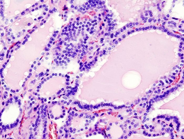 Histopathological image of diffuse hyperplasia of the thyroid gland clinically presenting as hyperthyroidism.