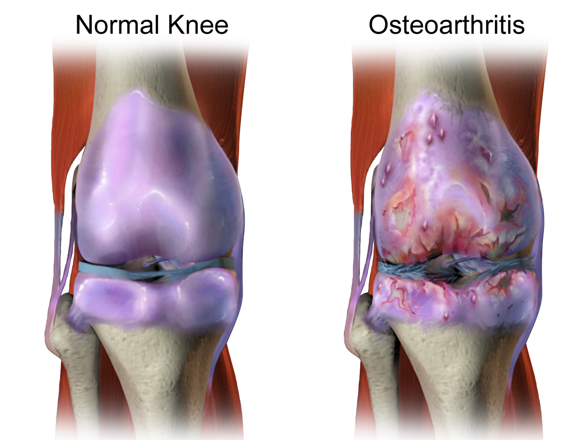 Image result for Difficulties With Osteoarthritis