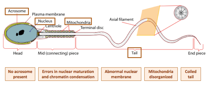 The structure of a sperm cell. Orange boxes represents areas with abnormal characteristics in globozoospermia, and the specific changes.