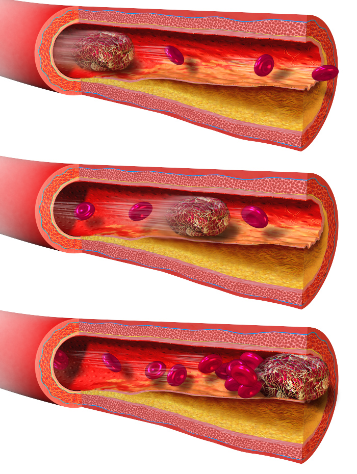 A graphic showing the mechanism of thromboembolism. A mobile blood clot, called embolus or thrombembolus, lodges in the narrowed part of a blood vessel, reducing blood flow.