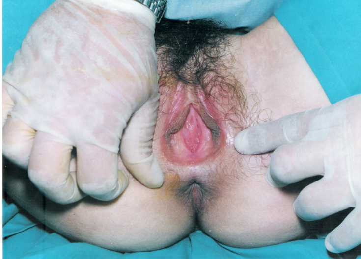 Absent vagina in woman with Mayer-Rokitansky-Küster-Hauser (MRKH) syndrome.