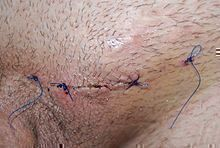 Sew up wound after varicocele surgery