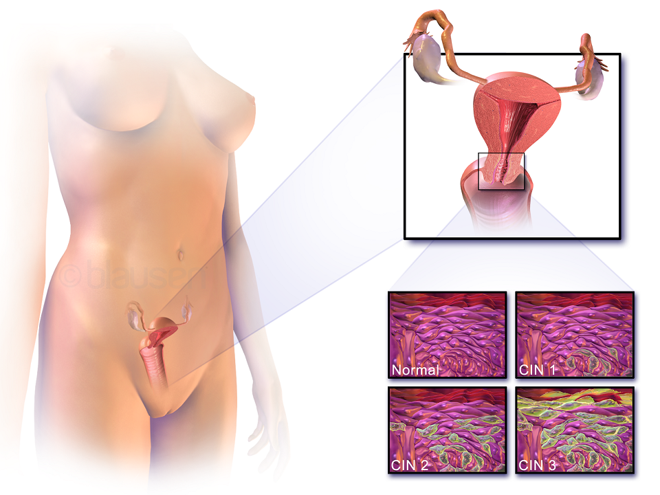 A development of cervical cancer.