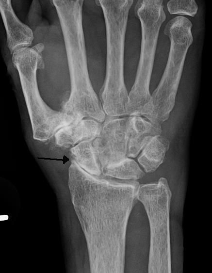 Severe osteoarthritis and osteopenia of the carpal joint and first carpometacarpal joint.