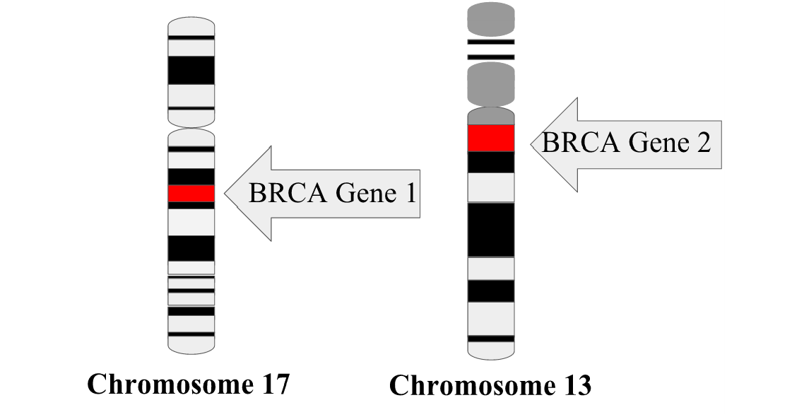 BRCA 1 has the cytogenetic location 17q21 or the q arm of Chromosome 17 at position 21. BRCA 2 has the cytogenetic location 13q12.3 or the q arm of Chromosome 13 at position 12.3.
