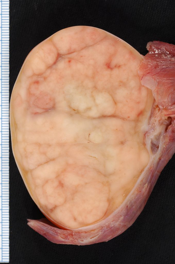 A seminoma of the testis.