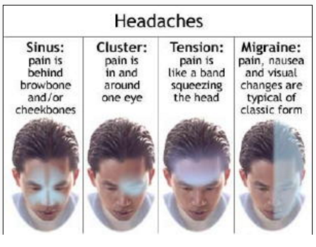 Types of headaches and their localization.