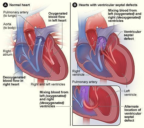 Figure A shows the structure and blood flow in the interior of a normal heart. Figure B shows two common locations for a ventricular septal defect.