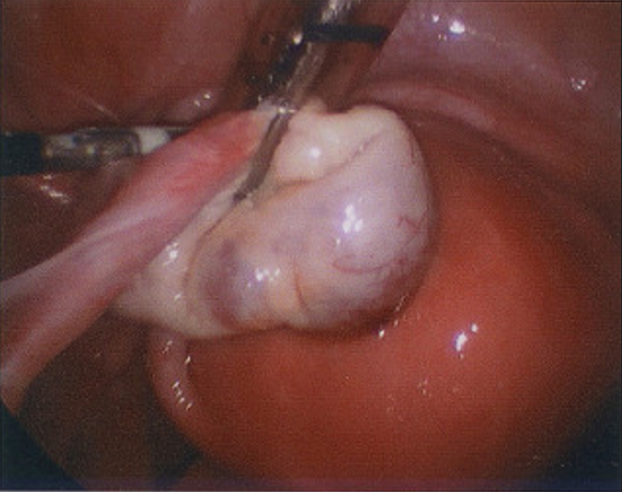 Pic. 1: Salpingo- oophorectomy