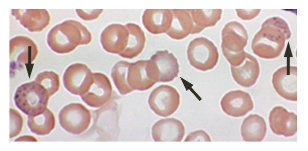 Basophilic stippling (arrows) of red blood cells in a 53-year-old who had elevated blood lead levels due to drinking repeatedly from glasses decorated with lead paint.