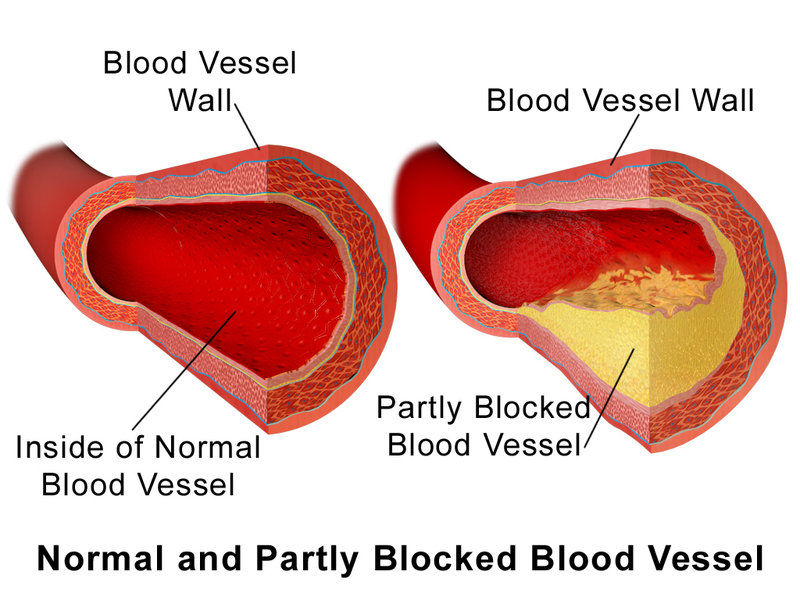 Pic. 1: Normal vs. partially blocked vessel