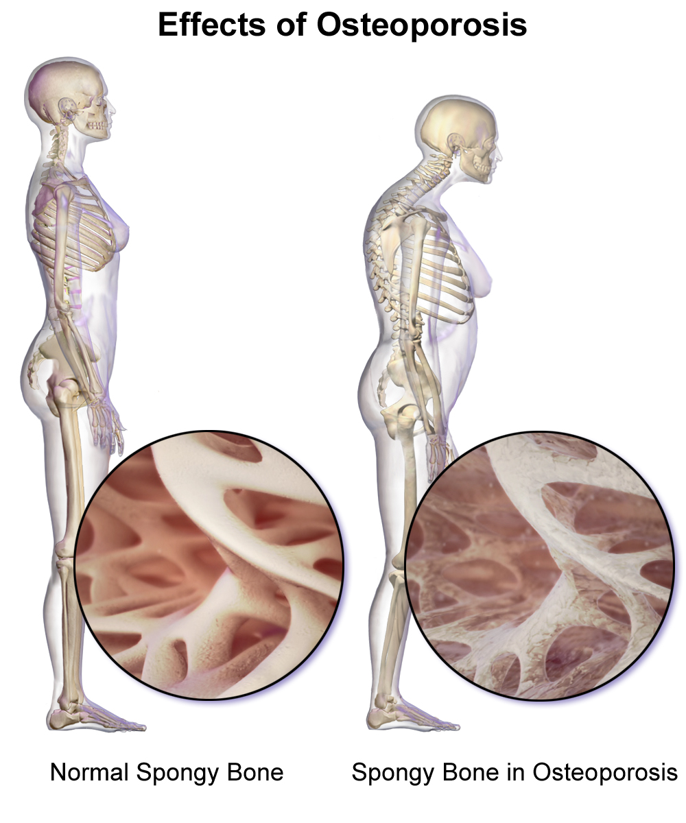 Osteoporosis develops when a large amount of the spongy bone tissue breaks down, leaving bigger spaces. The bone becomes more porous as a result.
