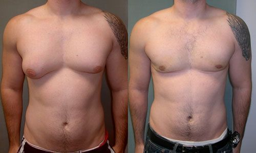 A photograph of a patient with asymmetric gynecomastia.