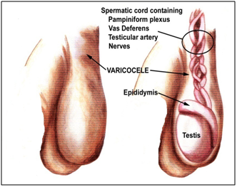 enlargement of veins in testicles